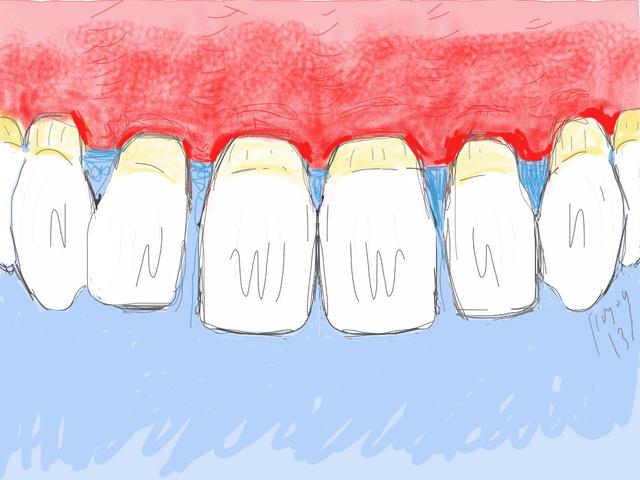 Parodontite avancée : gencive extrêmement rouge, gonflée, inflammatoire
