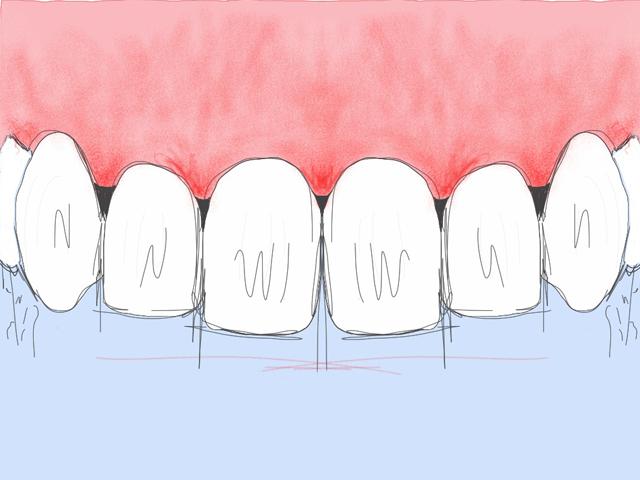 Parodontite débutante : saignements des gencives plus prononcés