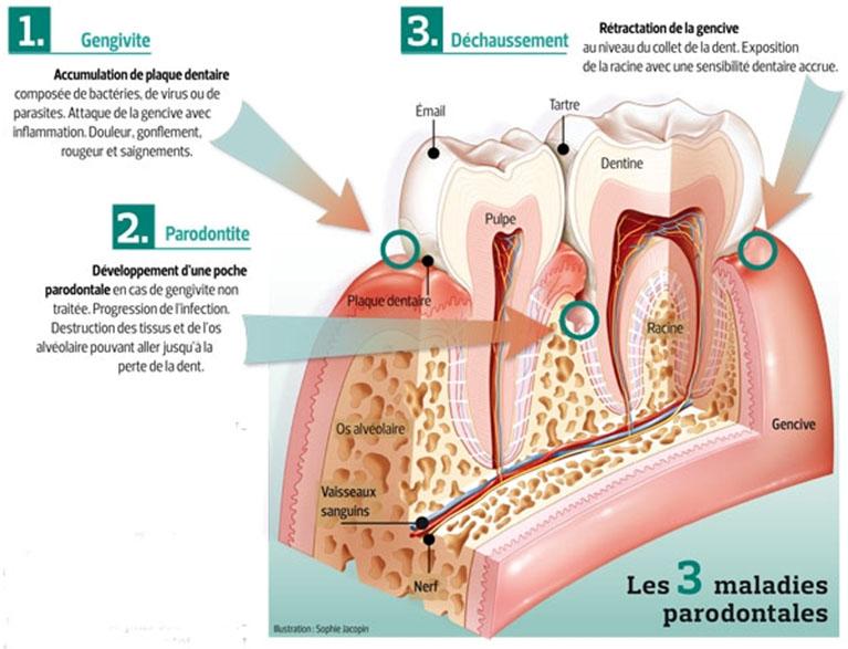 Parodontite visuel figaro